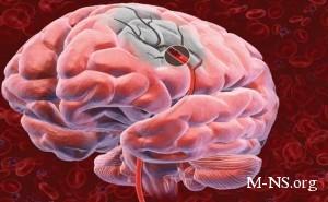 Простой тест может прогнозировать риск инсульта